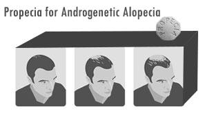 Propecia for Androgenetic Alopecia